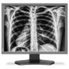 LCD monitorji NEC  NEC MultiSync MD212G3 3MP 21' 2 uparjena medicinska monitorja
